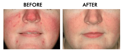 Microneedling with PRP Fort Lauderdale